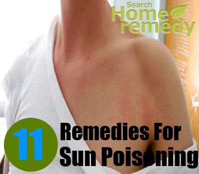 The Dangers Of A Sun Poisoning Rash And How To Deal With It @Bobbie Marie you need this!