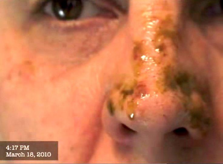 Watch: Cannabis Oil Cured My Skin Cancer