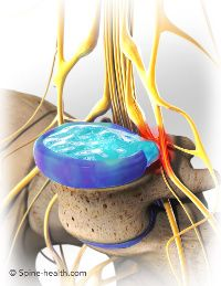 """Typical Symptoms of a Herniated Disc  Herniated disc pain in the Lumbar Spine! That's what mine is, and HA! There IS such a thing as sciatica and YES pain/numbness can occur in the legs and feet, HA! Take that fact and suck it to everyone who told me it's """"unrelated,"""" it's time to get your facts straight!"""