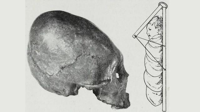 Por qué y cómo algunas culturas antiguas deformaban los cráneos de los bebés