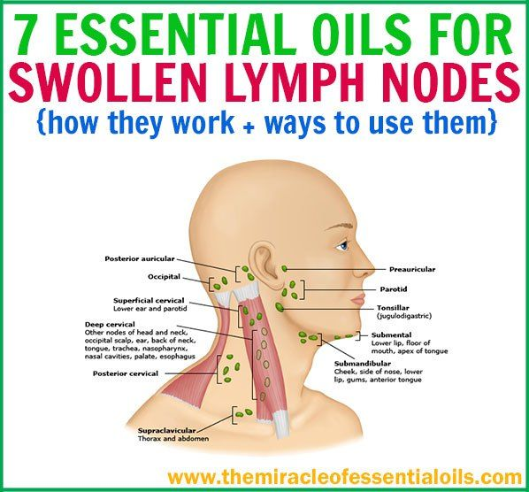 Best 25 Lymph Nodes Ideas That You Will Like On Pinterest