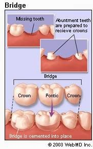 What is a Dental Bridge? | McCauley Dental http://www.thedaviedentist.com/home http://tmiky.com/pinterest