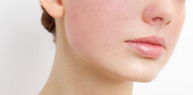 Een neus die snel rood wordt, een web van zichtbare kleine vaatjes op de wangen en gemakkelijk blozen; de kans is groot dat jij couperose hebt.