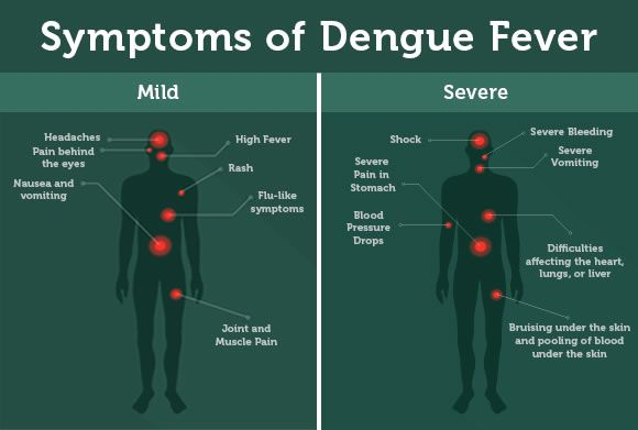 Anupost blog are here to helps you by suggesting the actual Symptoms of Dengue Fever and Causes of Dengue fever by referred from many articles,