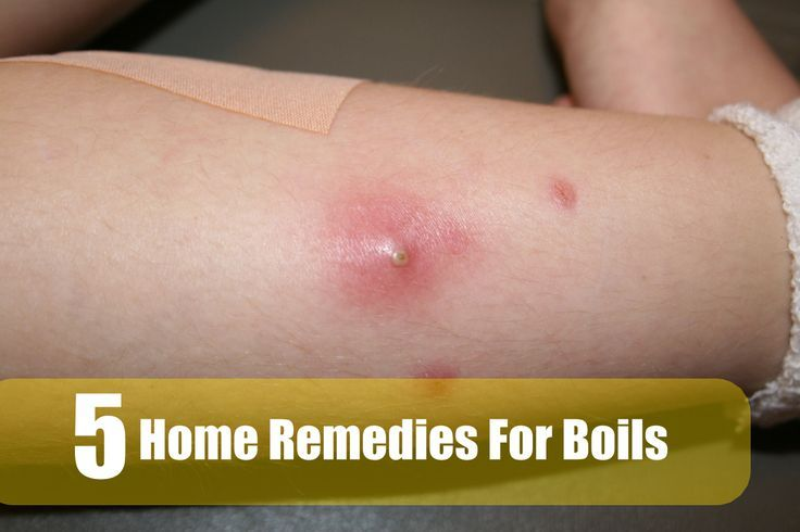 Best Home Remedies For Boils - Visit http://www.dailygate.org/boils-relief/best-home-remedies-for-boils/