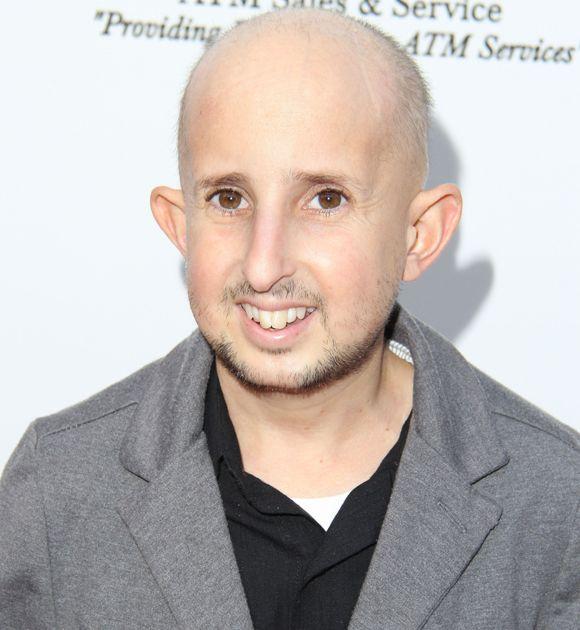 Ouff.... cet acteur s'est fait percuter par le rétroviseur d'une voiture! #ÉtatCritique #PetiteTaille   HollywoodPQ.com