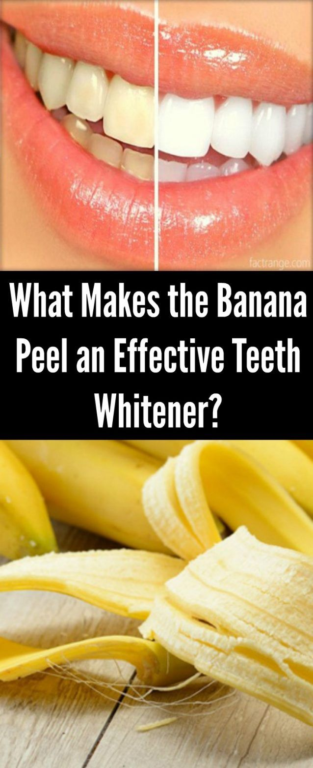 What Makes the Banana Peel an Effective Teeth Whitener?