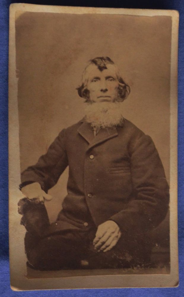 CDV Photo Old Man Huge White Chin Beard Top Knot Curl 1860s