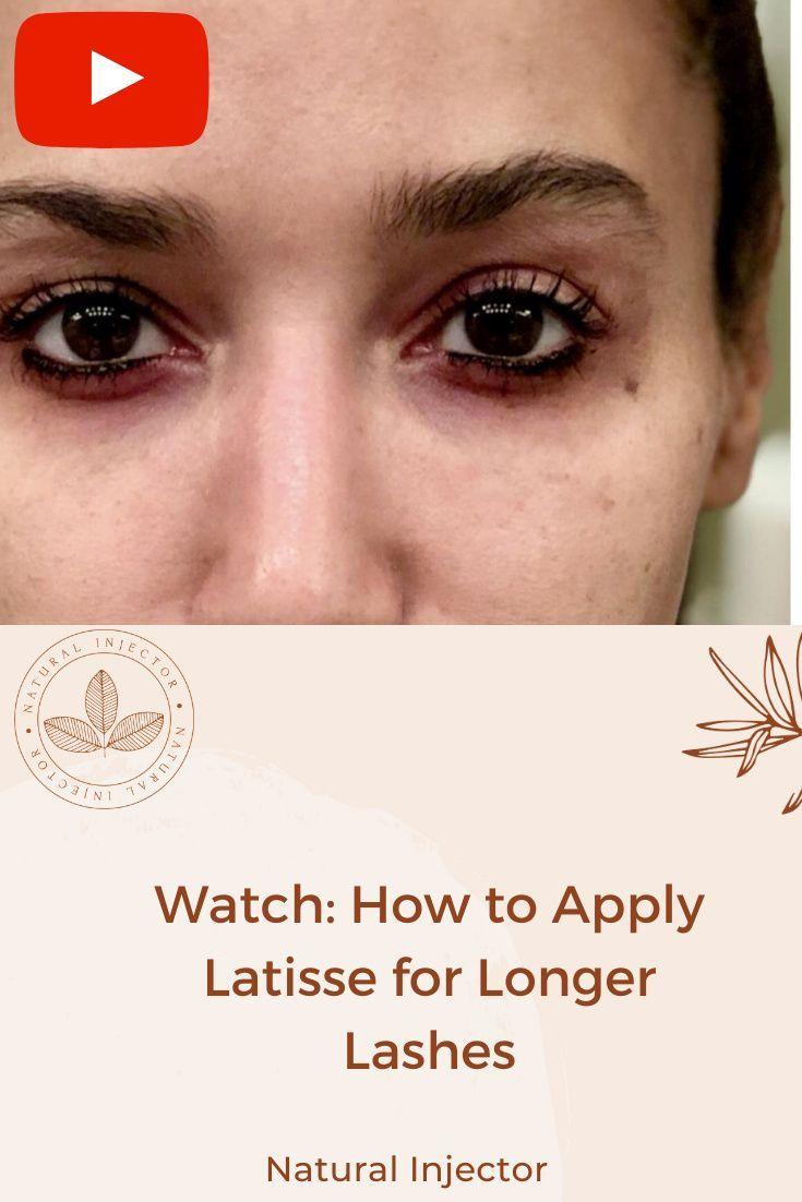 Latisse Before And After 3 Beautiful Eyelashes Eyelash Growth Fake Eyelashes