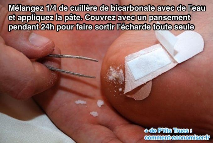 Pour enlever une écharde coincée sous la peau de bébé, mélangez 1/4 de cuillère de bicarbonate avec de l'eau et appliquez la pate.