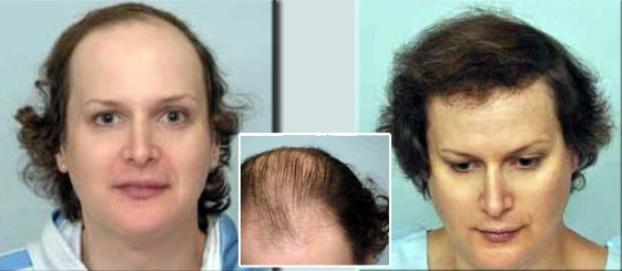 Hair transplant is very popular in Pakistan, but many people hesitate to have it due to its cost. Here is guide to know everything about hair transplant cost in Pakistan.