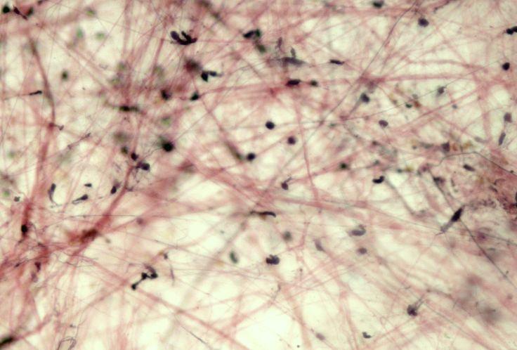 Areolar - loose connective tissue properAreolar Tissue