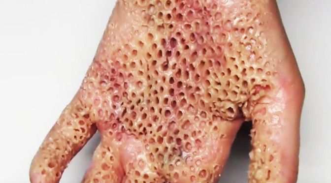 trypophobia pictures of tick infestation | Trypophobia Hand