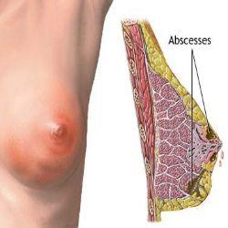 Interesting. Tell breast abscess symptoms
