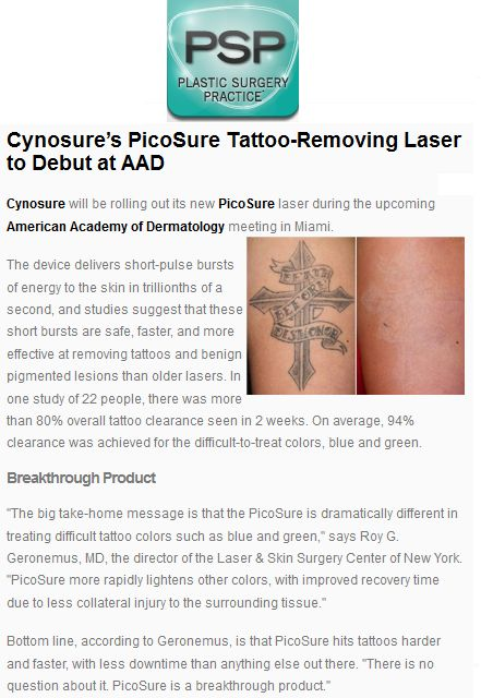 http://www.plasticsurgerypractice.com/products/20006-cynosures-s-picosure-tattoo-removing-laser-to-debut-at-aad #knoxville #Laser #tattooremoval Bye Bye Ink opening Spring 2014 e mail byebyeink@byebyeink.com