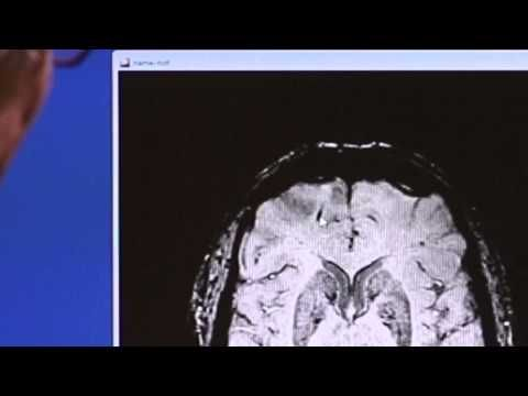 Frontal Lobe Damage Impacts Behavior 403 - YouTube