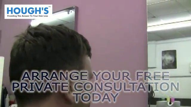 If you are looking for hair replacement Wolverhampton call us today on 01902 420374 needs through a non surgical replacement system.