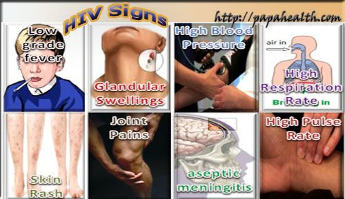 HIV Signs: Sometimes the signs of AIDS are not observable until the problem progresses to an advanced stage.
