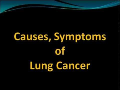 Causes, Symptoms of Lung Cancer - WATCH VIDEO HERE -> http://bestcancer.solutions/causes-symptoms-of-lung-cancer    *** symptoms of lung cancer ***   Causes, Symptoms of Lung Cancer-information about causes of lung cancer,symptoms of lung cancer Video credits to the YouTube channel owner