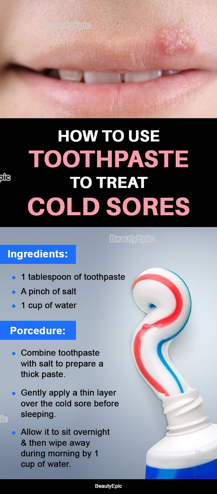 Ca  30 Resultater: Can Toothpaste Get Rid Of Cold Sores