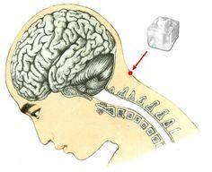 Voilà ce qui arrive quand vous placez un glaçon sur ce point précis de votre tête.... C'est extraordinaire !