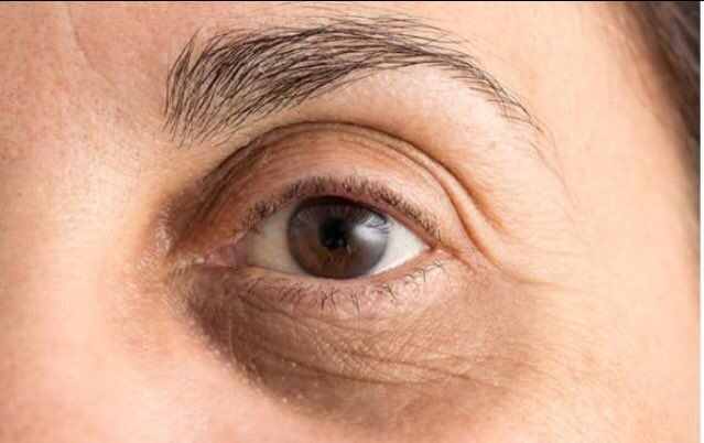 Puffy eyes and dark circles occur for many reasons: #allergies, #stress, fatigue, and lack of #sleep. #PrateEye