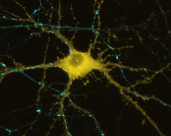 Neurona humana que muestra la formación de actina en respuesta a la estimulación vista al microscopio. Imagen de Michael A. Colicos, UC San Diego