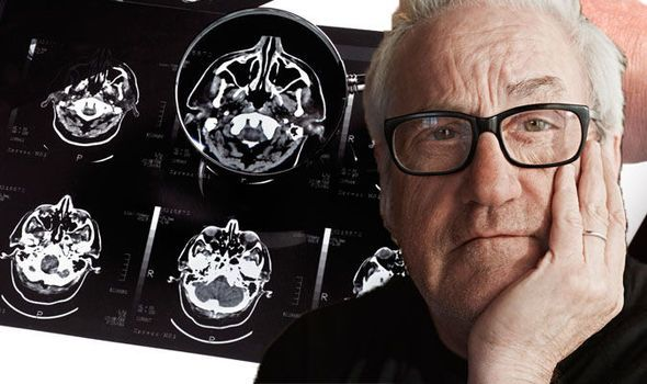 You Can See More: Early dementia symptoms - The surprise sign that youre at risk of Alzheimer's disease