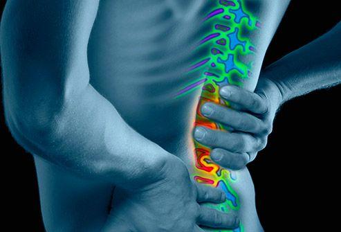 Toto je veľmi účinný recept na odstránenie bolesti chrbta, kĺbov a nôh za 7 dní - SlovenskýVirál.com