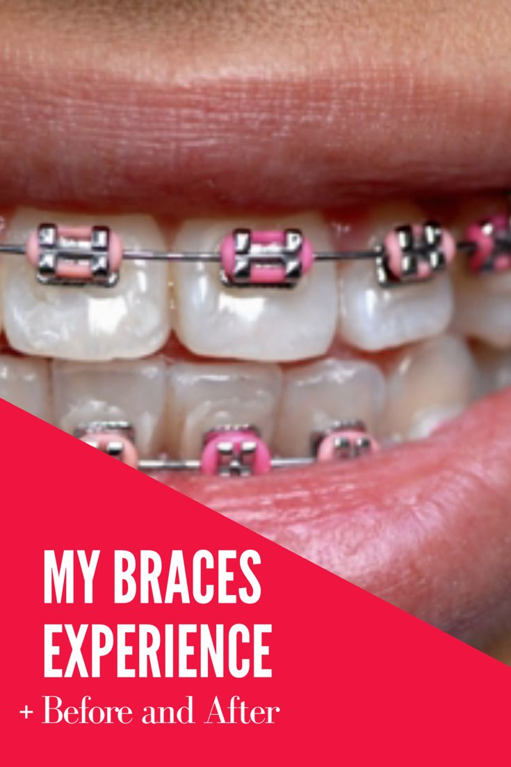 My Braces Experience | I also included braces before and after  pictures. If you want braces, click here to find out more about my braces experience