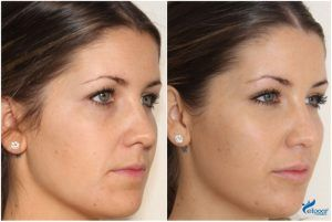 Before & Afters by Luxe Skin by Doctor Q Botox Dermal Fillers Glasgow