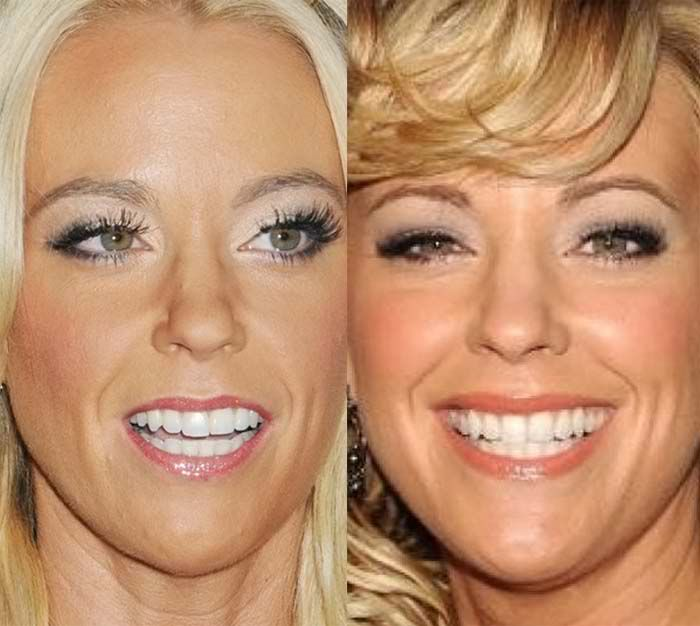 Kate Gosselin Closeup Face Plastic Surgery