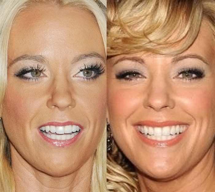 Kate Gosselin Closeup Face Plastic Surgery