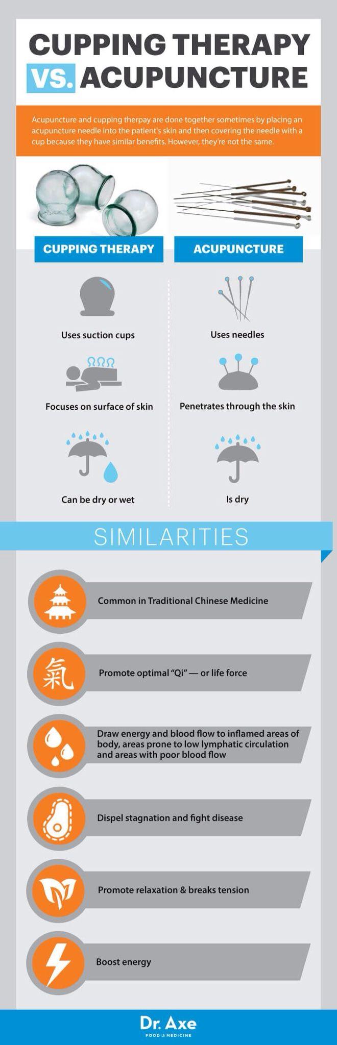 Bańki, a akupunktura. Co jest lepsze? A może stosować razem? Podobieństwa i różnice.