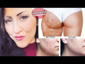 MIRACOLOSO!!! ADDIO CELLULITE, SMAGLIATURE, BRUFOLI e PUNTI NERI!!! | Carlitadolce - YouTube