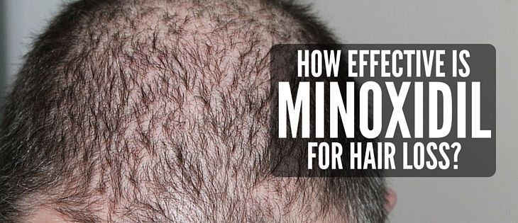 Minoxidil is effectiveness for hair restoration will depend on having sufficient quantities of Minoxidil enzyme sulfotransferase.