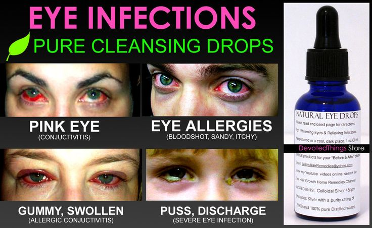 100% natural eye cleansing drops for helping the body get rid of infections like pink eye, eye puss, eye discharge, allergies, bloodshot eyes, and more!