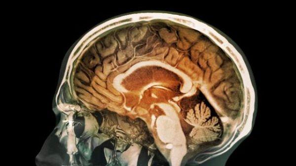 Alta concentración magnetita en tejido cerebral