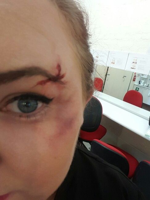 Fake bruise and cut