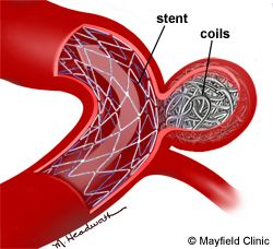 Endovascular Aneurysm Coiling. This is what I have in my brain :)