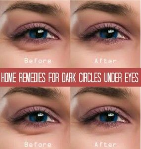 home remedies for dark circles 1000 ideas about periorbital circles on 28750