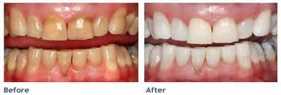 Find out more about Teeth Whitening available at Birmingham dentist Eternal Smiles, Home Whitening, Laser Whitening, Zoom and Enlighten Teeth Whitening in Solihull, Birmingham.