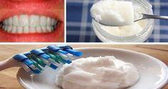 Un dentifrice naturel à base d'huile de coco et de bicarbonate de soude pour blanchir les dents !