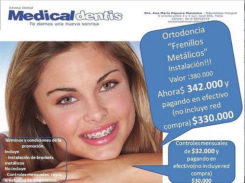 Promoción frenillos metálicos $342.000 antes $380.000 y Pagando en efectivo $330.000 ($330.000 no valido con tarjeta de débito o Red Compra), controles mensuales $32.000 y Pagando en efectivo $30.000 ($30.000 no valido con tarjeta de débito o Red Compra) - 96453510 - medicaldentis@gmail.com - www.medicaldentis.com , 5 oriente entre 3 y 4 sur, local 855, Talca. Síguenos Foursquare https://es.foursquare.com/medicaldentis