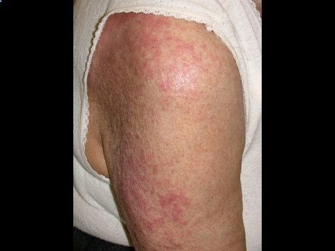 Eczema Treatment Tips - How To Treat Eczema And Home Remedies - CLICK HERE for the Eczema Treatment! #eczema #eczematreatment #healthguides Learn How To Cure Eczema Naturally & Permanently in 3 Days! Get Rid Of Eczema Fast Without The Need of Any Medication. CLICK HERE ►►► 100% GUARANTEED Results by over 50,000 People... - #Eczema