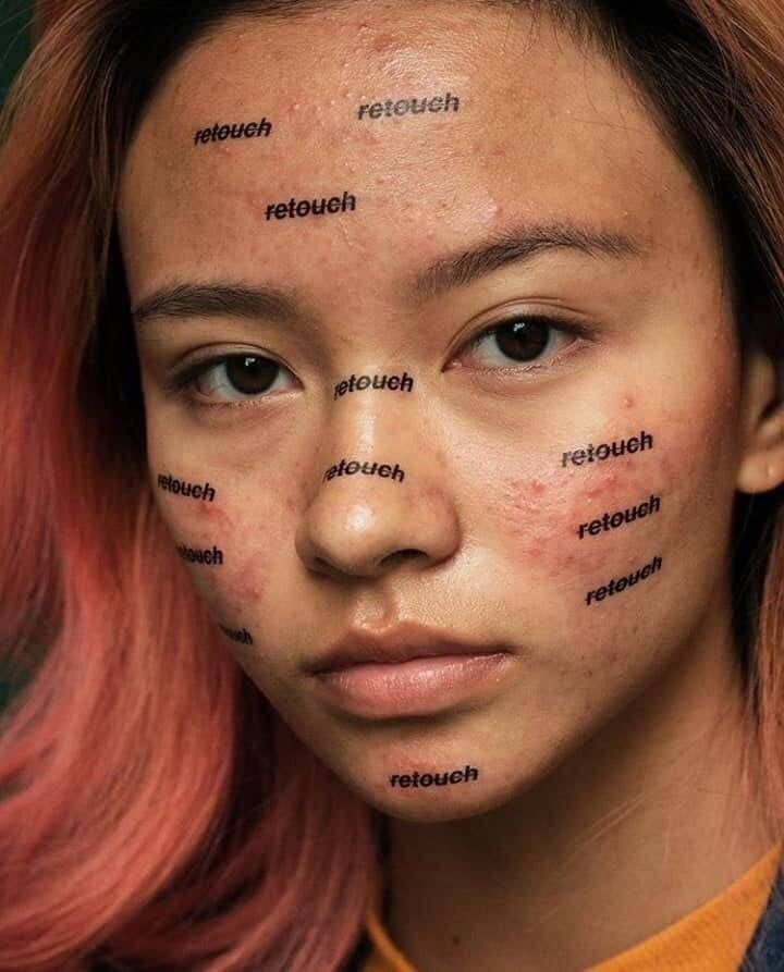 Acne is common, but it's easy to forget that when everything is Photoshopped to perfection. Artist Peter DeVito wants to change the conversation, so he's making acne on his models look beautiful. Beauty Photography, Portrait Photography, Body Positivity Photography, Feminism Photography, Inspiring Photography, Photography Editing, Photography Projects, Creative Photography, Photography Of People