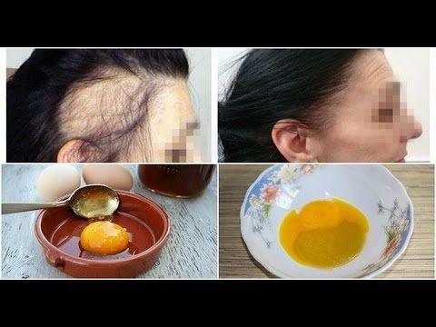 """Receitinha """"mágica"""" com 3 ingredientes para fazer o cabelo crescer rapidamente! - YouTube"""
