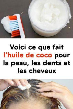 Elle utilisait l'huile de coco pour sa peau, ses dents et ses cheveux…ce qui est arrivé est incroyable