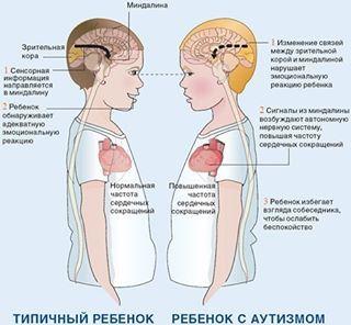 Картинка из инета. Вот почему ауты не смотрят в глаза другим людям...дискомфорт. #аутизм, #логопед, #речь, #занятия, #Москва