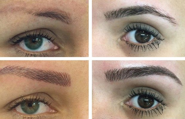 Micropigmentação de sobrancelhas: conheça a técnica que ...